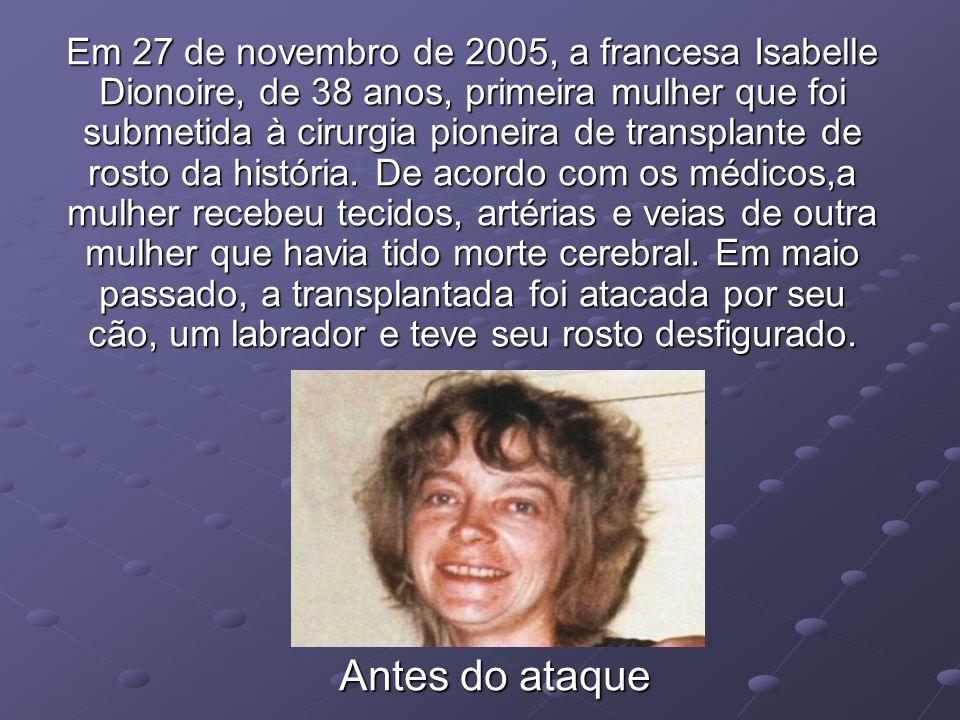 Em 27 de novembro de 2005, a francesa Isabelle Dionoire, de 38 anos, primeira mulher que foi submetida à cirurgia pioneira de transplante de rosto da