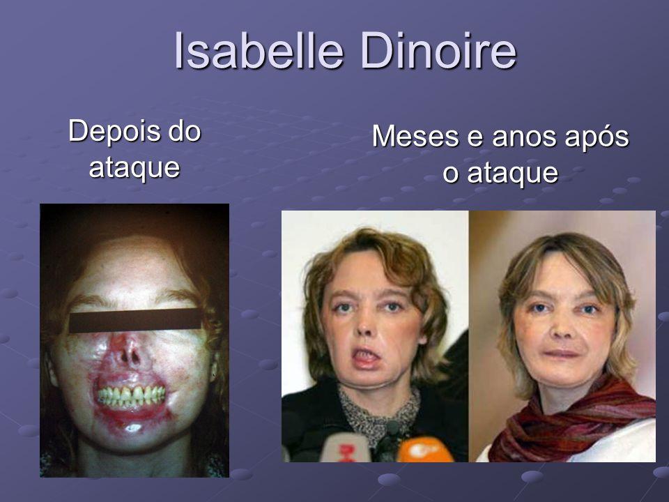 Isabelle Dinoire Depois do ataque Meses e anos após o ataque
