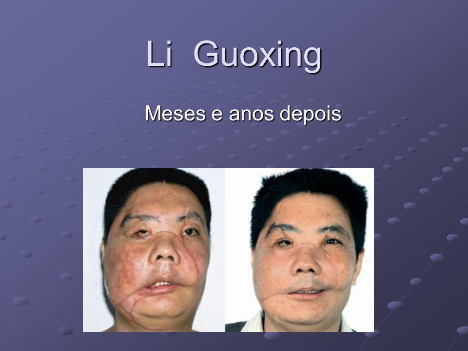 Li Guoxing Meses e anos depois