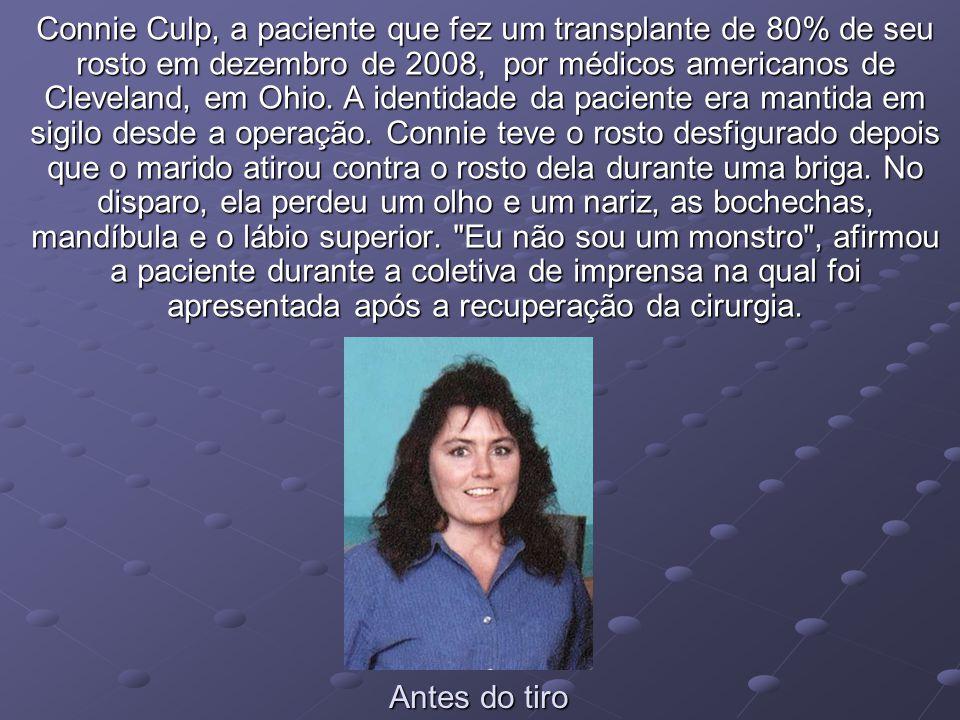 Connie Culp, a paciente que fez um transplante de 80% de seu rosto em dezembro de 2008, por médicos americanos de Cleveland, em Ohio. A identidade da