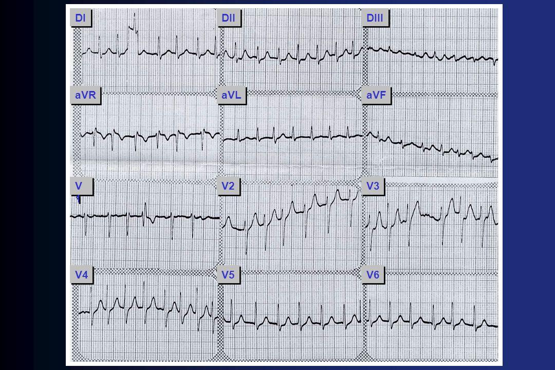 - Feito Dilacoron (1 ½ ampola IV) - FC em repouso = 70 bpm Avaliação clínica inicial na FA Avaliação clínica inicial na FA - História e exame físico - ECG - R-x tórax (se houver suspeita de alteração parenquimatosa ou vascular pulmonar) - Ecocardiograma (valvopatia, tamanho de AE e AD, função de VE, HAP, HVE, trombo AE, pericárdio) - Avaliação de função tireoideana (FC difícil controle) Fuster et al., ACC/AHA/ESC GUIDELINES FOR THE MANAGEMENT OF PATIENTS WITH ATRIAL FIBRILLATION.