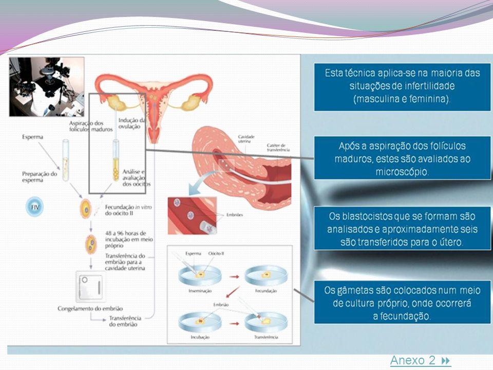 Fig.2 Técnica de fertilização in vitro Exemplo de técnicas medicamente assistidas Exemplo de técnicas medicamente assistidas