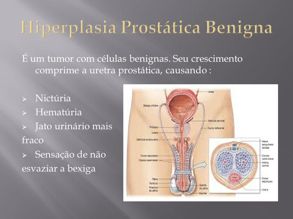 É um tumor com células benignas. Seu crescimento comprime a uretra prostática, causando : Nictúria Hematúria Jato urinário mais fraco Sensação de não