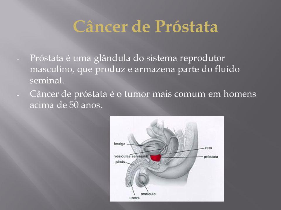 Câncer de Próstata - Próstata é uma glândula do sistema reprodutor masculino, que produz e armazena parte do fluido seminal. - Câncer de próstata é o