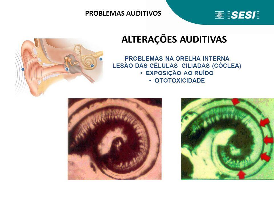 PROBLEMAS AUDITIVOS ALTERAÇÕES AUDITIVAS PROBLEMAS NA ORELHA INTERNA LESÃO DAS CÉLULAS CILIADAS (CÓCLEA) EXPOSIÇÃO AO RUÍDO OTOTOXICIDADE