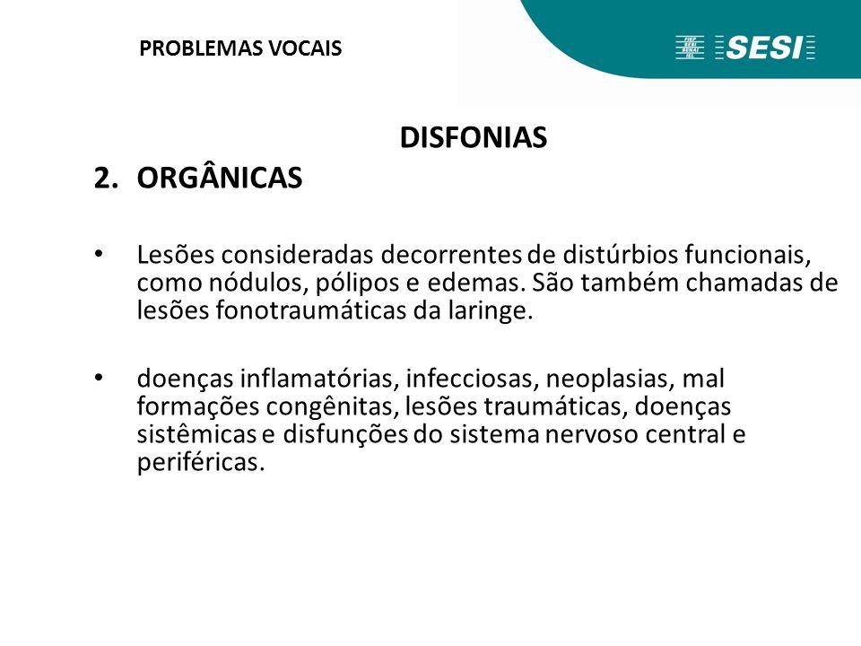 PROBLEMAS VOCAIS DISFONIAS 2.ORGÂNICAS Lesões consideradas decorrentes de distúrbios funcionais, como nódulos, pólipos e edemas. São também chamadas d