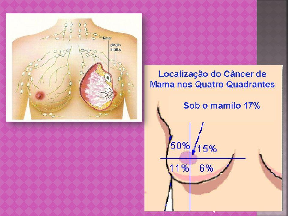 Pode ocorrer na mulher e no homem A descoberta precoce melhora muito o prognóstico Maior risco para mulheres acima de 40 anos Fatores hereditários importantes na incidência Metástases para fígado, cérebro, pulmão, osso 5