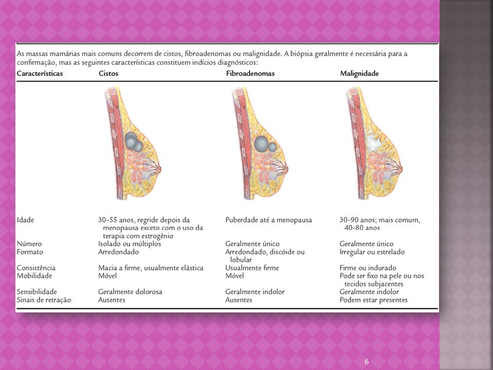 Sexo feminino Idade crescente História pessoal de câncer de mama História familiar de Ca mama Menarca precoce Ingestão de álcool Menopausa tardia Nuliparidade Primeiro filho depois dos 30 anos Terapia hormonal Obesidade 7