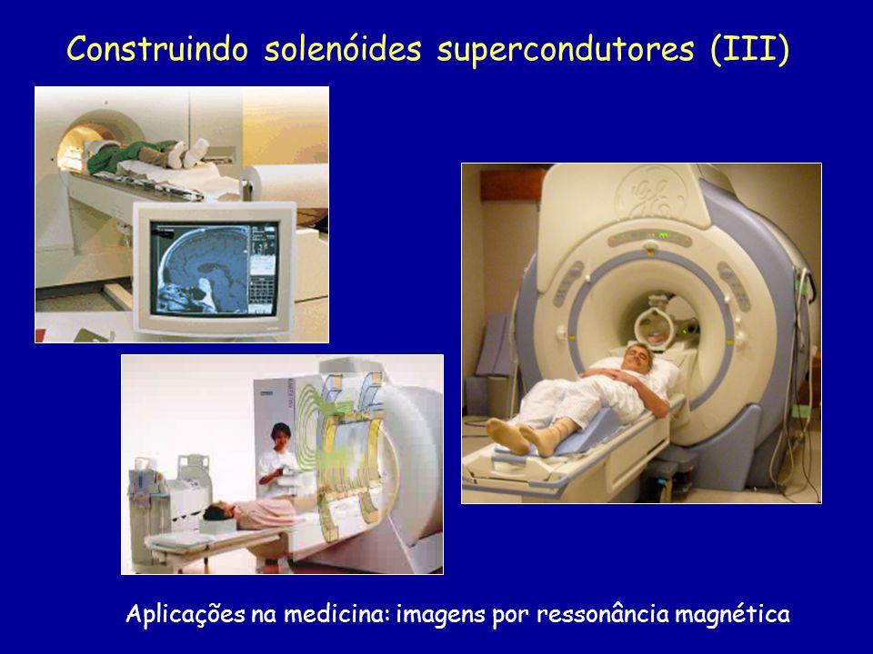 Construindo solenóides supercondutores (III) Aplicações na medicina: imagens por ressonância magnética