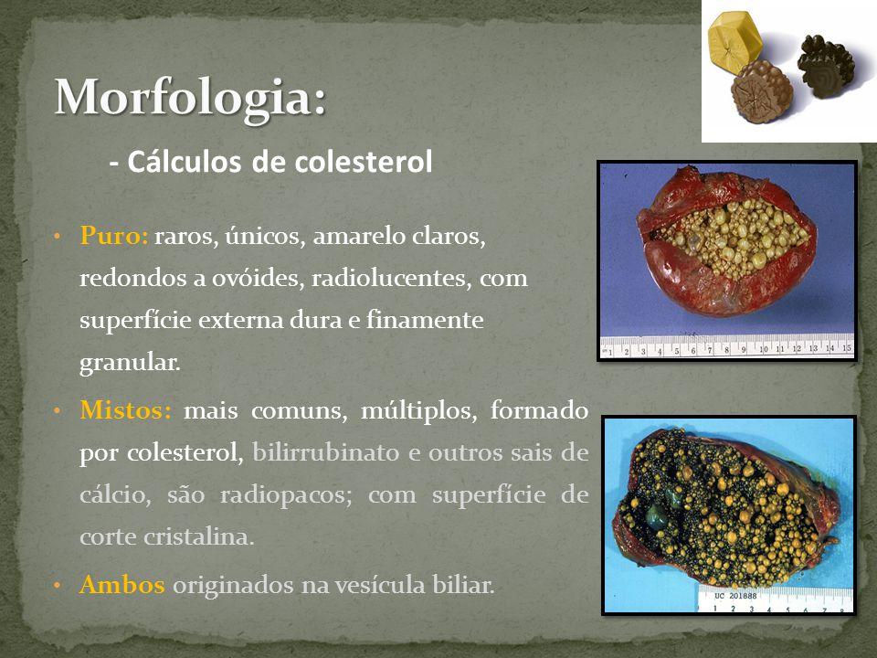 Puro: raros, únicos, amarelo claros, redondos a ovóides, radiolucentes, com superfície externa dura e finamente granular.