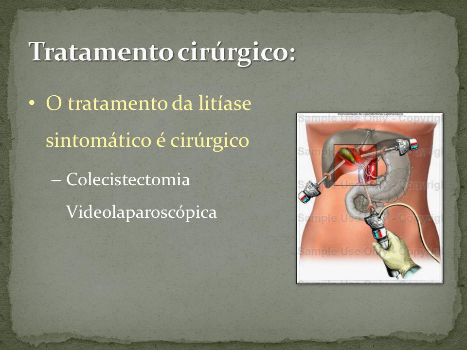O tratamento da litíase sintomático é cirúrgico – Colecistectomia Videolaparoscópica