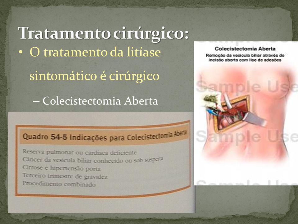 O tratamento da litíase sintomático é cirúrgico – Colecistectomia Aberta