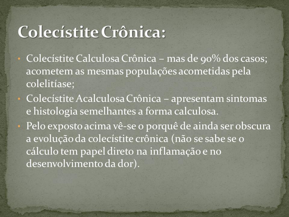 Colecístite Calculosa Crônica – mas de 90% dos casos; acometem as mesmas populações acometidas pela colelitíase; Colecístite Acalculosa Crônica – apresentam sintomas e histologia semelhantes a forma calculosa.
