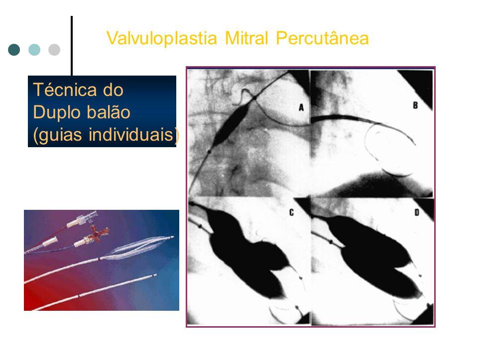 Técnica do Duplo balão (guias individuais) Valvuloplastia Mitral Percutânea