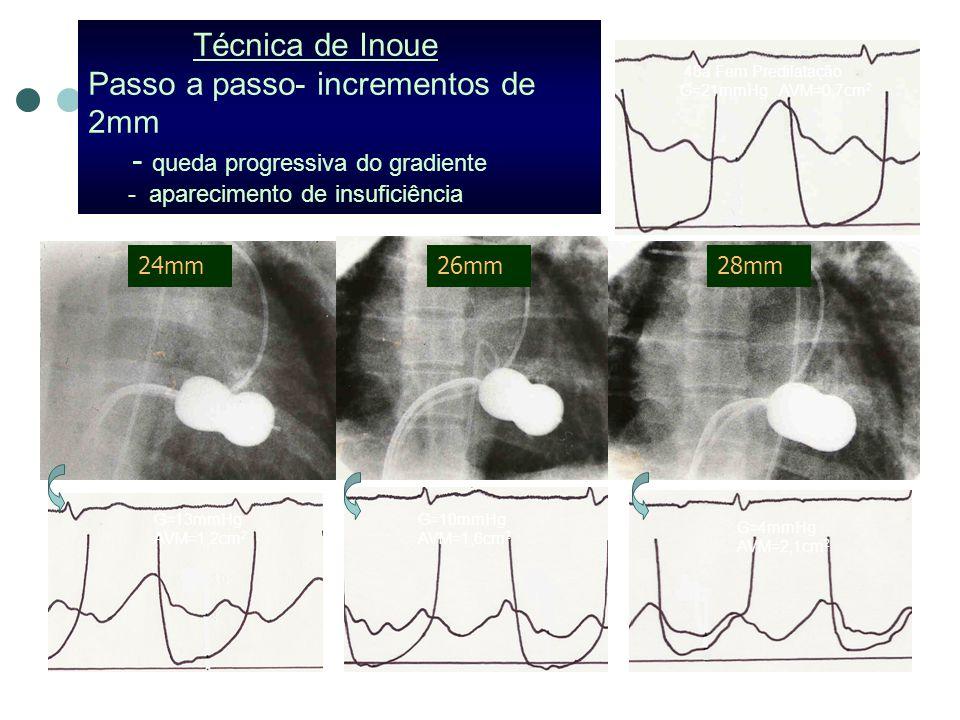 24mm26mm28mm Técnica de Inoue Passo a passo- incrementos de 2mm - queda progressiva do gradiente - aparecimento de insuficiência G=13mmHg AVM=1,2cm 2 G=10mmHg AVM=1,6cm 2 G=4mmHg AVM=2,1cm 2 48a Fem Predilatação G=21mmHg AVM=0,7cm 2