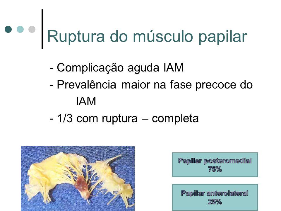 Ruptura do músculo papilar - Complicação aguda IAM - Prevalência maior na fase precoce do IAM - 1/3 com ruptura – completa