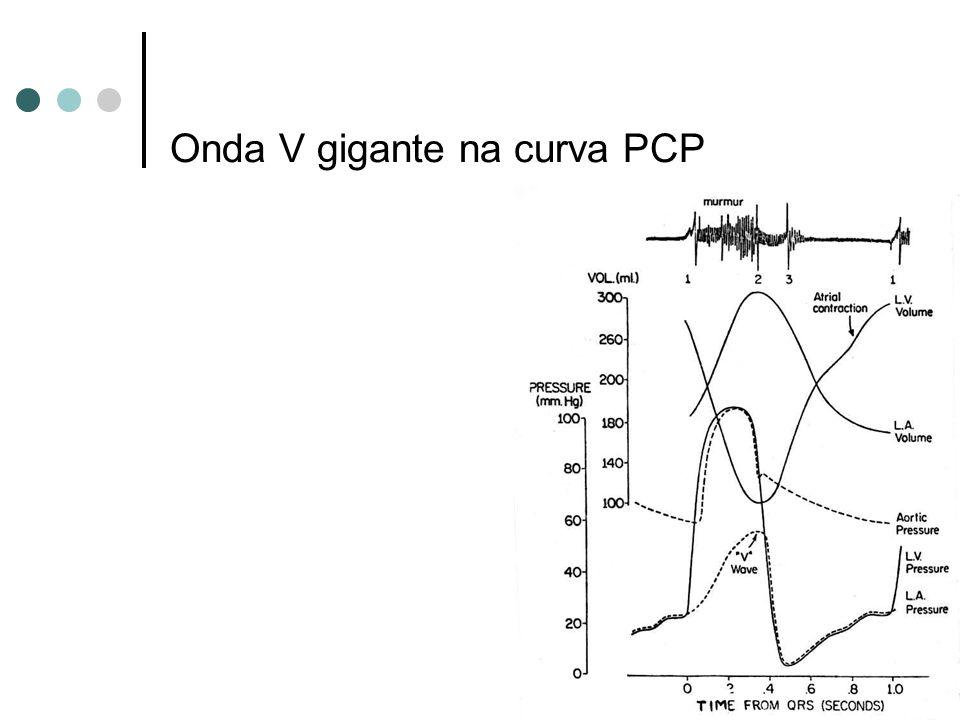Onda V gigante na curva PCP