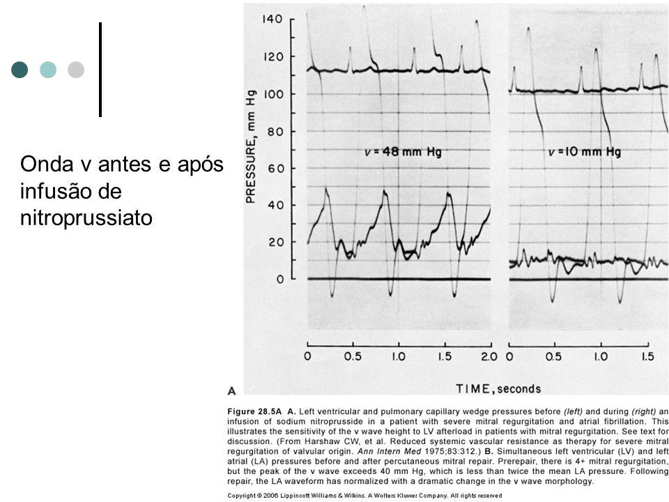 Onda v antes e após infusão de nitroprussiato