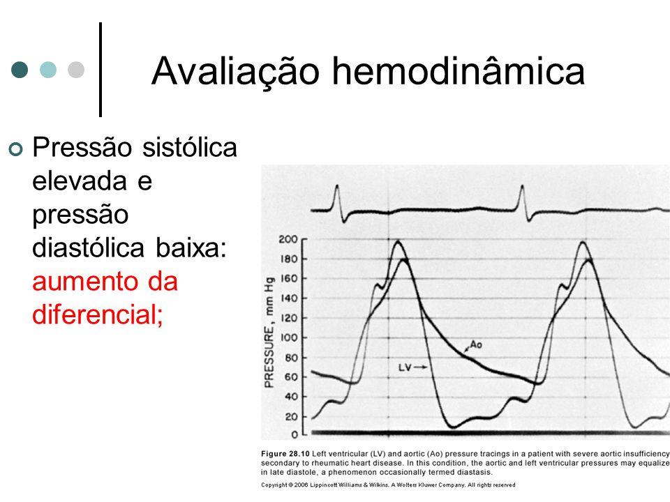 Avaliação hemodinâmica Pressão sistólica elevada e pressão diastólica baixa: aumento da diferencial;