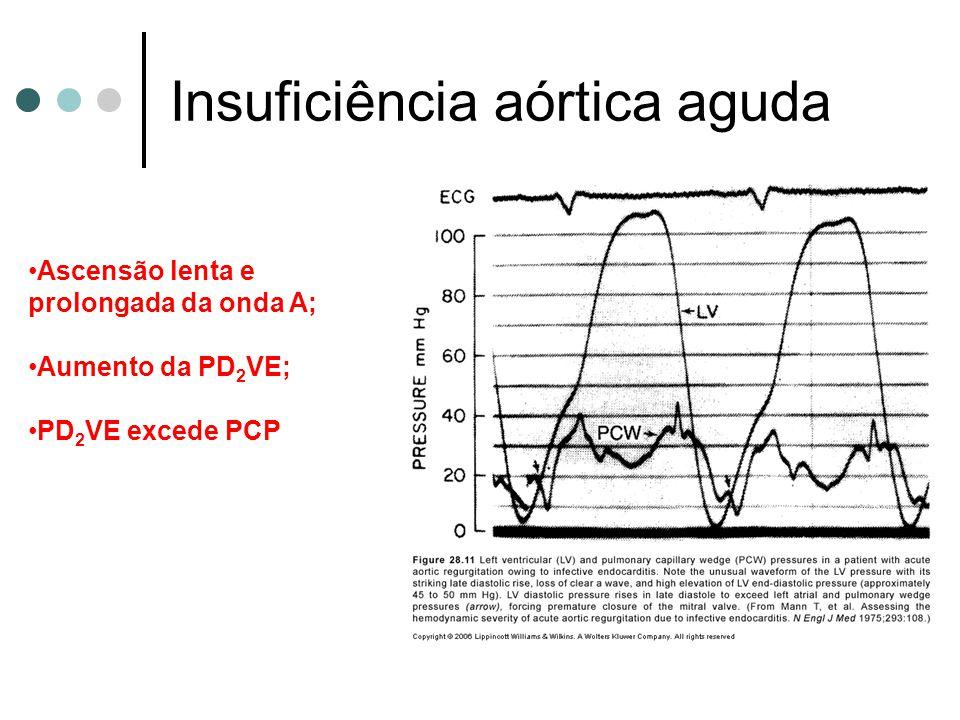 Insuficiência aórtica aguda Ascensão lenta e prolongada da onda A; Aumento da PD 2 VE; PD 2 VE excede PCP