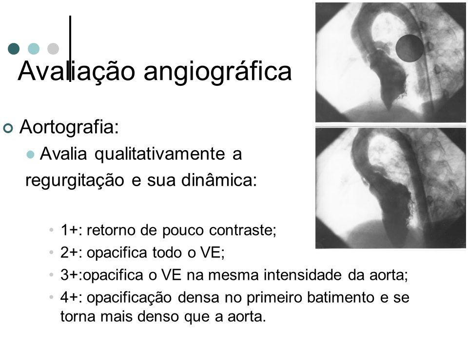 Avaliação angiográfica Aortografia: Avalia qualitativamente a regurgitação e sua dinâmica: 1+: retorno de pouco contraste; 2+: opacifica todo o VE; 3+:opacifica o VE na mesma intensidade da aorta; 4+: opacificação densa no primeiro batimento e se torna mais denso que a aorta.