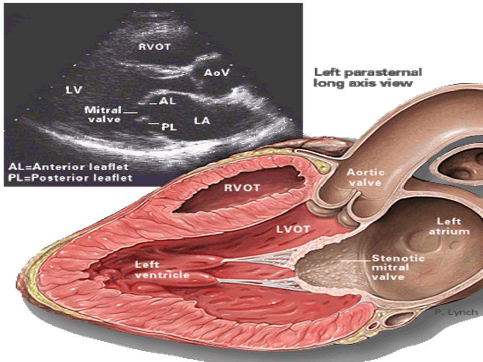 Cateterismo com dobutamina Ventrículo em falência com pequeno gradiente: Gradiente pequeno ou ventrículo insuficiente.