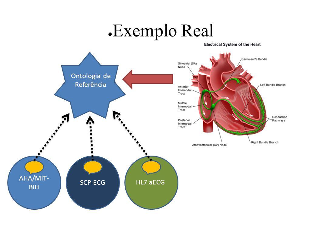 Exemplo Real AHA/MIT- BIH SCP-ECG HL7 aECG Ontologia de Referência