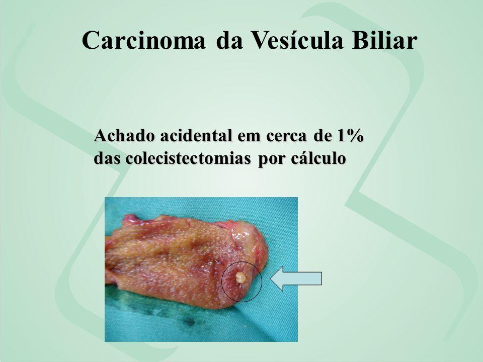 Achado acidental em cerca de 1% das colecistectomias por cálculo Carcinoma da Vesícula Biliar
