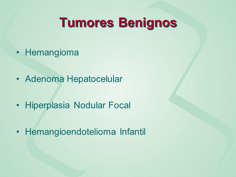 Hemangioma O tumor hepático mais comum Assintomático, exceto quando comprimem estruturas adjacentes ou distendem a cápsula hepática Achado incidental à USG Podem ser únicos ou múltiplos, grandes ou pequenos Só os sintomáticos devem ser ressecados