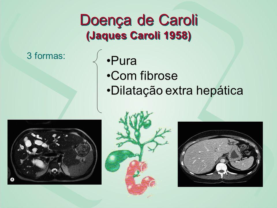 Doença de Caroli (Jaques Caroli 1958) 3 formas: Pura Com fibrose Dilatação extra hepática
