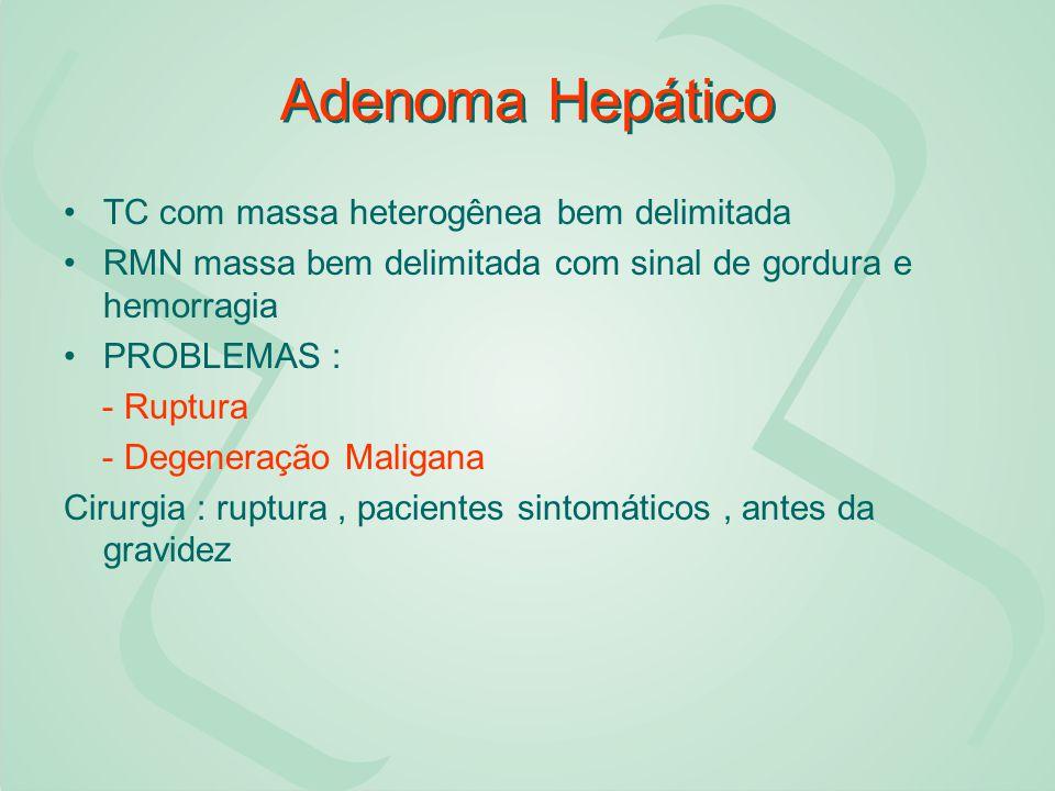 Adenoma Hepático TC com massa heterogênea bem delimitada RMN massa bem delimitada com sinal de gordura e hemorragia PROBLEMAS : - Ruptura - Degeneraçã