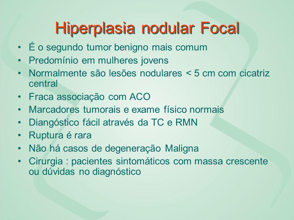 Hiperplasia nodular Focal É o segundo tumor benigno mais comum Predomínio em mulheres jovens Normalmente são lesões nodulares < 5 cm com cicatriz cent