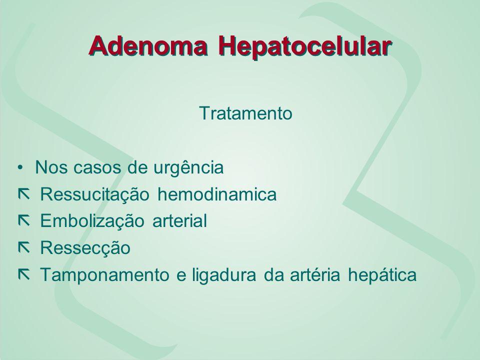 Adenoma Hepatocelular Tratamento Nos casos de urgência ã Ressucitação hemodinamica ã Embolização arterial ã Ressecção ã Tamponamento e ligadura da art