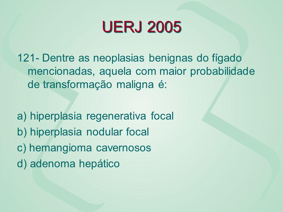 UERJ 2005 121- Dentre as neoplasias benignas do fígado mencionadas, aquela com maior probabilidade de transformação maligna é: a) hiperplasia regenera