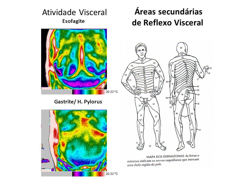 Atividade Visceral Esofagite Gastrite/ H. Pylorus Áreas secundárias de Reflexo Visceral