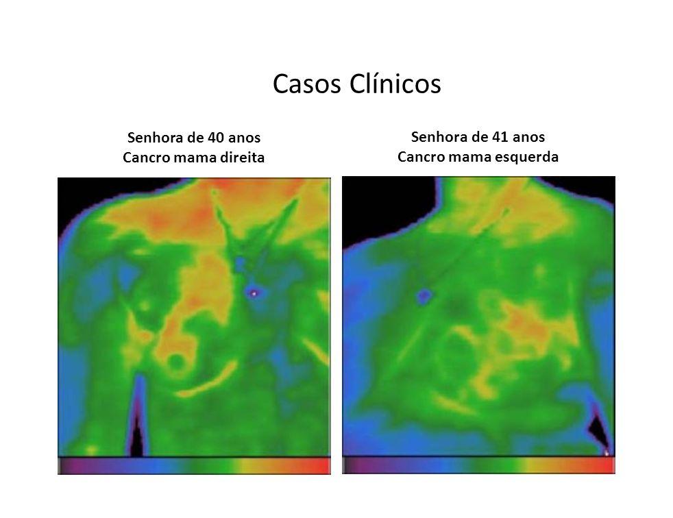 Casos Clínicos Senhora de 40 anos Cancro mama direita Senhora de 41 anos Cancro mama esquerda