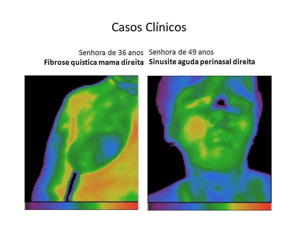 Senhora de 36 anos Fibrose quistica mama direita Senhora de 49 anos Sinusite aguda perinasal direita Casos Clínicos