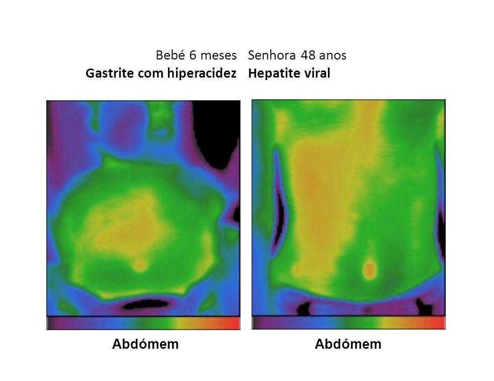 Bebé 6 meses Gastrite com hiperacidez Abdómem Senhora 48 anos Hepatite viral Abdómem