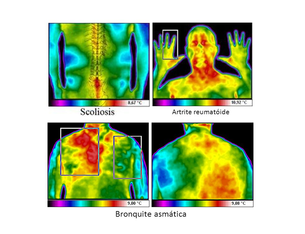 Bronquite asmática Artrite reumatóide