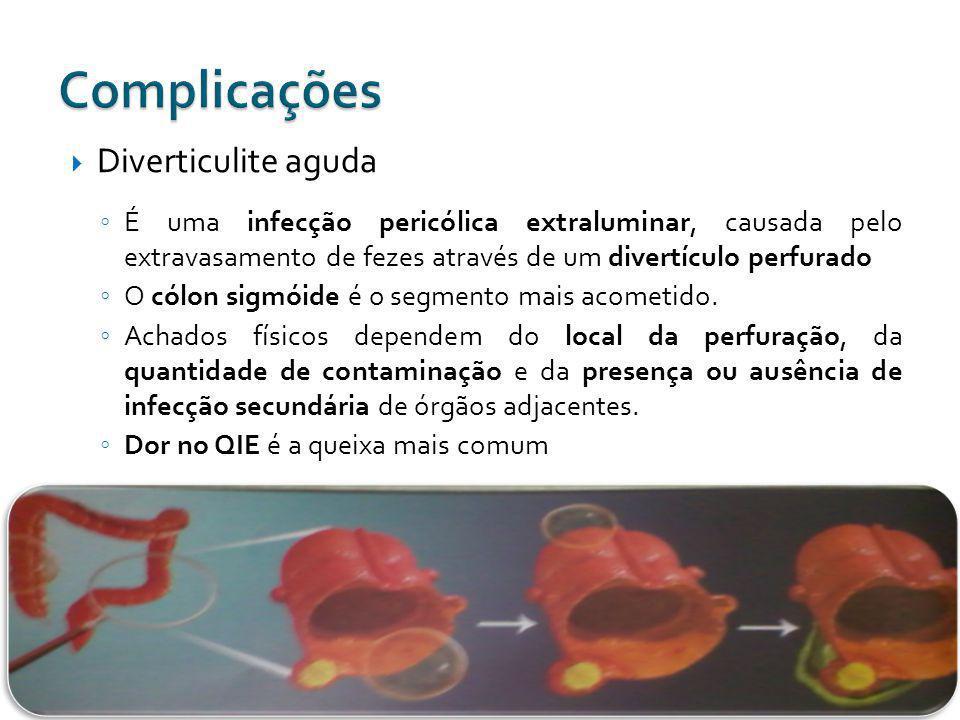 Diverticulite aguda É uma infecção pericólica extraluminar, causada pelo extravasamento de fezes através de um divertículo perfurado O cólon sigmóide