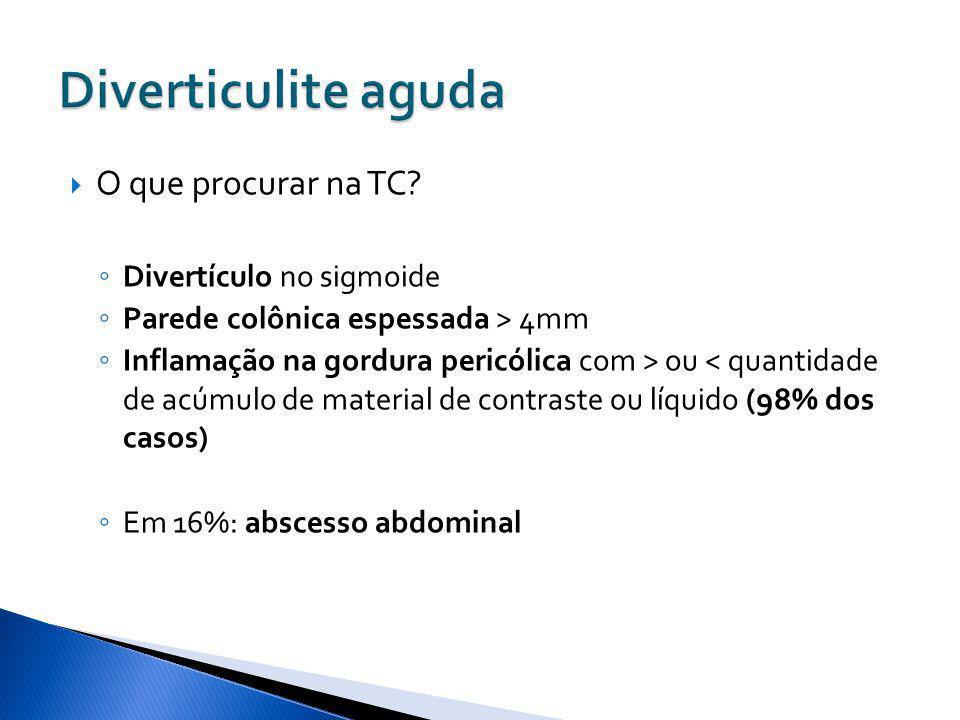 O que procurar na TC? Divertículo no sigmoide Parede colônica espessada > 4mm Inflamação na gordura pericólica com > ou < quantidade de acúmulo de mat