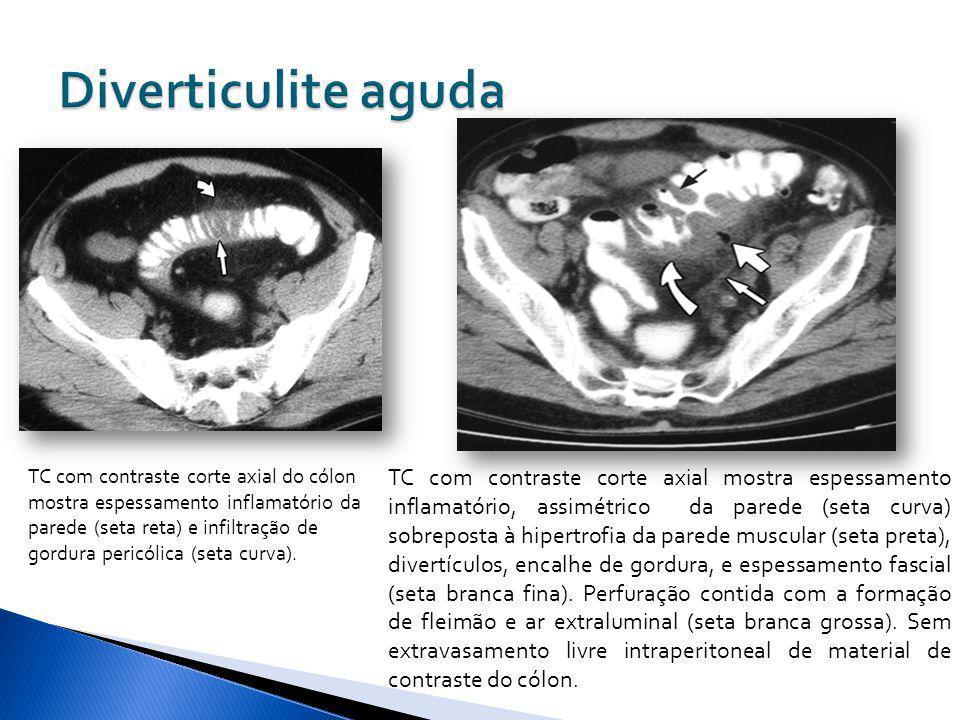 TC com contraste corte axial do cólon mostra espessamento inflamatório da parede (seta reta) e infiltração de gordura pericólica (seta curva). TC com