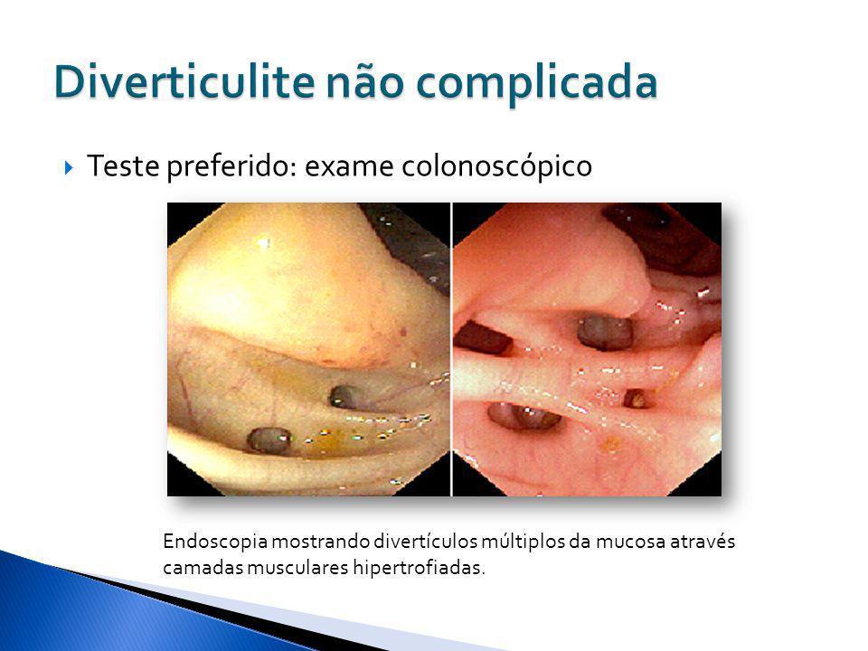 Teste preferido: exame colonoscópico Endoscopia mostrando divertículos múltiplos da mucosa através camadas musculares hipertrofiadas.