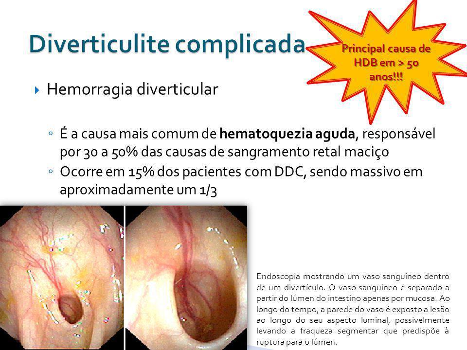 Hemorragia diverticular É a causa mais comum de hematoquezia aguda, responsável por 30 a 50% das causas de sangramento retal maciço Ocorre em 15% dos