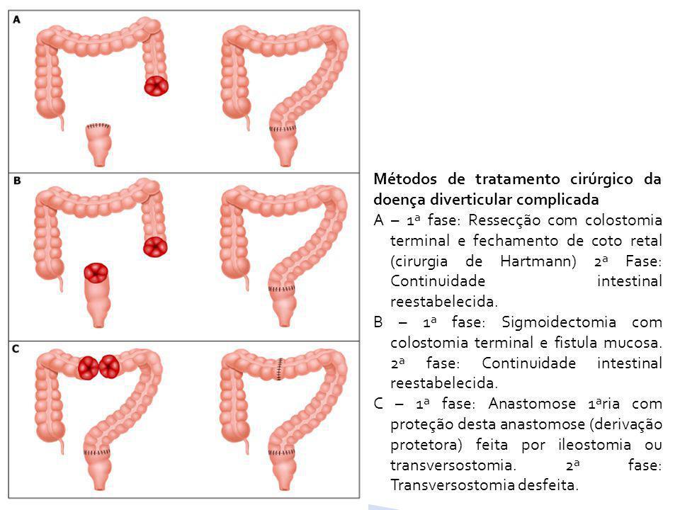 Métodos de tratamento cirúrgico da doença diverticular complicada A – 1ª fase: Ressecção com colostomia terminal e fechamento de coto retal (cirurgia