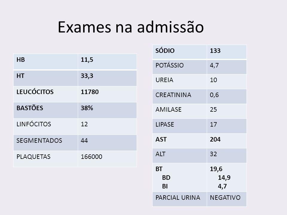 Exames na admissão HB11,5 HT33,3 LEUCÓCITOS11780 BASTÕES38% LINFÓCITOS12 SEGMENTADOS44 PLAQUETAS166000 SÓDIO133 POTÁSSIO4,7 UREIA10 CREATININA0,6 AMIL