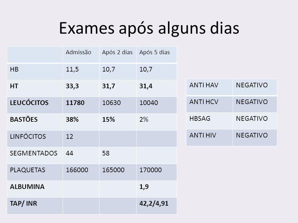 Exames após alguns dias ANTI HAVNEGATIVO ANTI HCVNEGATIVO HBSAGNEGATIVO ANTI HIVNEGATIVO AdmissãoApós 2 diasApós 5 dias HB11,510,7 HT33,331,731,4 LEUC