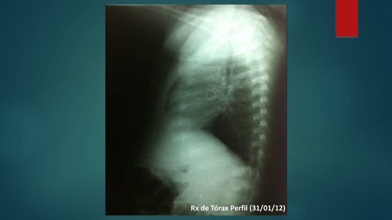 Inflamação do parênquima do pulmão, geralmente causada por microorganismos.