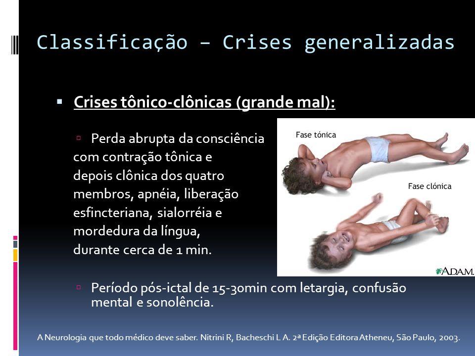Crises tônico-clônicas (grande mal): Perda abrupta da consciência com contração tônica e depois clônica dos quatro membros, apnéia, liberação esfincte