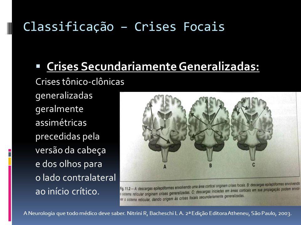 Crises Secundariamente Generalizadas: Crises tônico-clônicas generalizadas geralmente assimétricas precedidas pela versão da cabeça e dos olhos para o